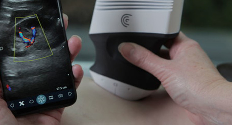 Clarius C3 Wireless Scanner